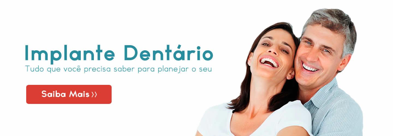 Planejamento Para Fazer o Seu Implante Dentário