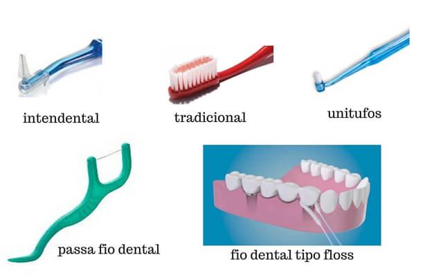 manutençao e higienizaçao de implantes dentarios (1)