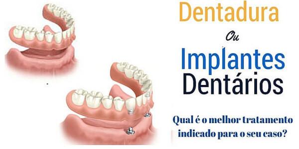 Implantes dentários ou dentaduras: Qual é o melhor tratamento para o seu caso?