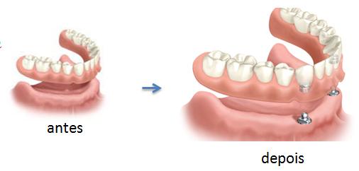 implantes dentarios e dentaduras