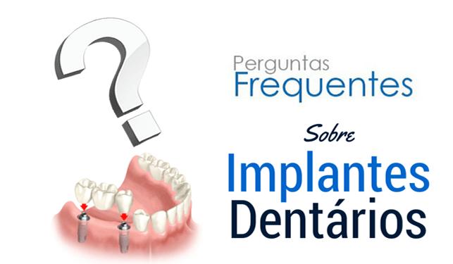 implantes dentarios perguntas