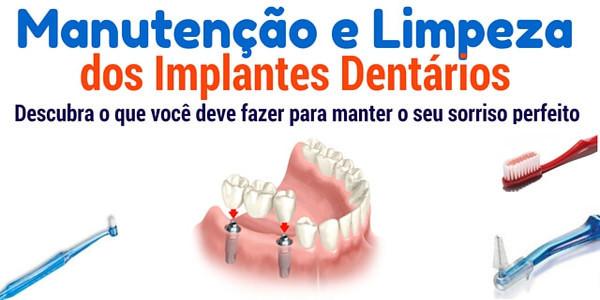 Manutenção e limpeza dos implantes dentários :  aprenda o que você deve fazer para manter o seu sorriso perfeito.