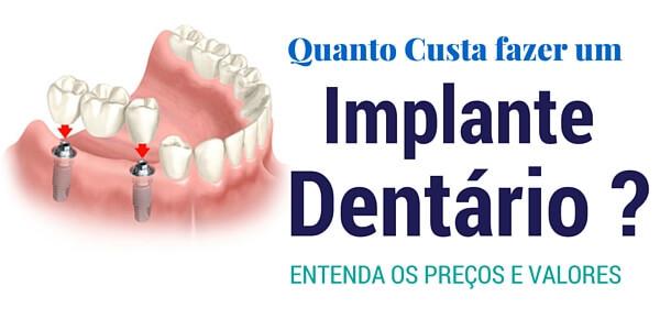 Quanto custa um implante dentário ? Entenda os preços e valores.