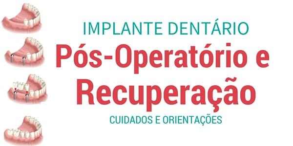 Implante Dentário :Cuidados pós-operatório e recuperação