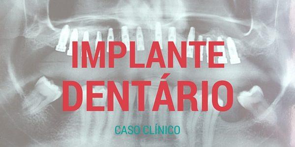 Caso Clínico – Implante Dentário – [Fotos]