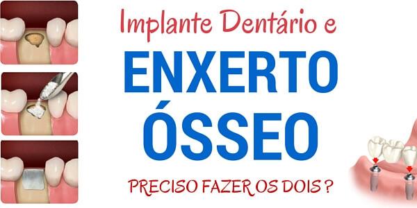 Implante Dentário e Enxerto Ósseo : Preciso Fazer os Dois?