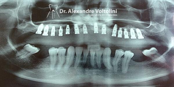 raio x de implantes 2