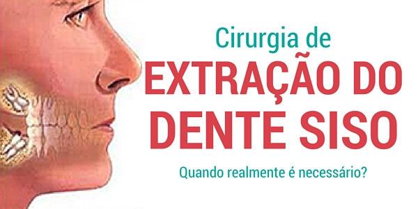 Cirurgia para extração do dente de siso : Quando realmente é necessário?