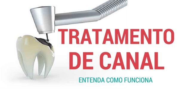 Tratamento de Canal – Uma Alternativa Segura Para Salvar Os Dentes