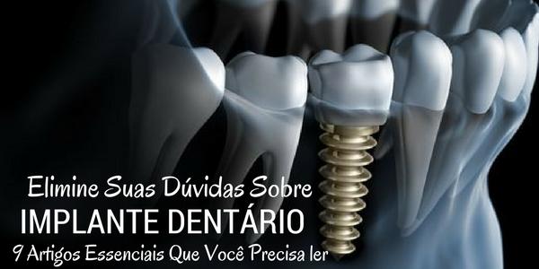 Nossos 9 melhores artigos sobre implante dentário e vários segredos revelados – Veja!