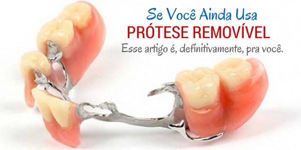 Se você usa usa prótese dentária removível esse texto definitivamente é pra você.