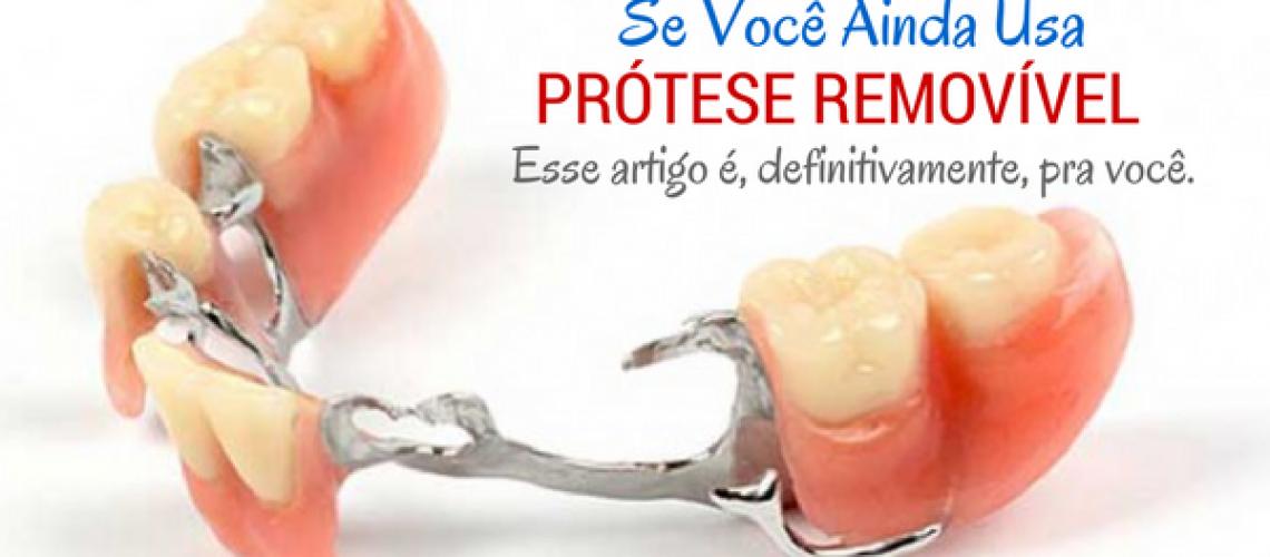 dd85ccfe6519 Você usa prótese dentária removível? Esse texto é para você - Leia!